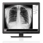 LG анонсировала линейку устройств диагностики для медицинских учреждений